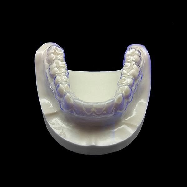 clear teeth aligner